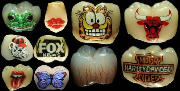 Tatouage-dentaire