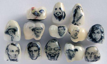 Ttattooth tatouage dentaire