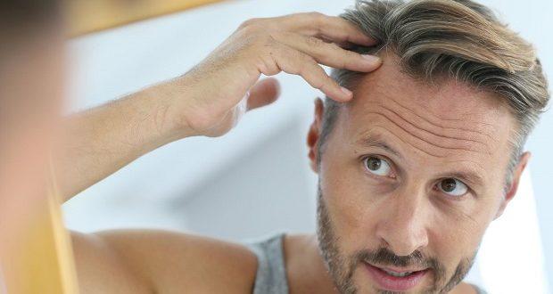 calvitie solution greffe de cheveux perte de cheveux