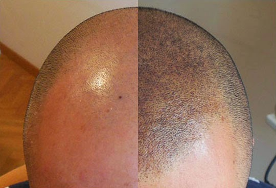 solution anti perte de cheveux tatouage