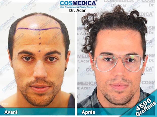 greffe-cheveux-cosmedica-resultat