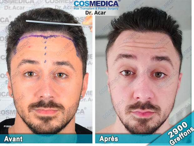 resultat-greffe-cheveux-cosmedica-avant-apres