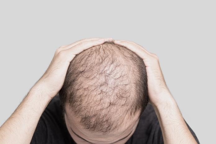 Calvitie perte de cheveux comment faire