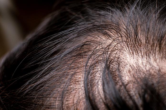 Comment faire pousser les cheveux